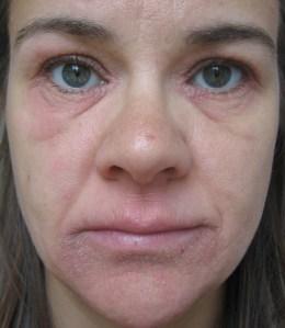 eczema 1