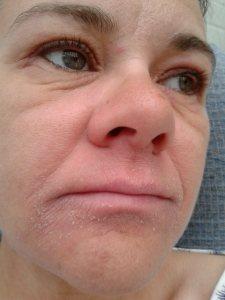 eczema 4